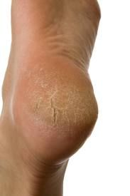 For an overnight treatment, try the following: massage olive oil mixed with a bit of white vinegar or lemon juice over the feet, concentrating on the heels. Honey is a natural moisturizer so if you want, put some in your mixture. Put on cotton socks. In the morning, wash it off. Exfoliate. Dry thoroughly. Moisturize.