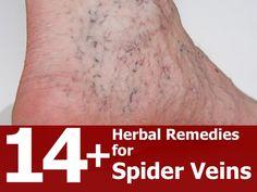 14 Herbal Remedies For Spider Veins