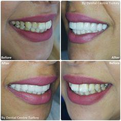 Dental Holiday Turkey - Dentist in Turkey - Dental Implants, Crowns, Veneers Root Canal Treatment, Smile Makeover, Dental Bridge, Smile Design, Dentist In, Dental Implants, Restore, Teeth, Improve Yourself