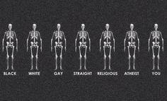 forskelligheder sat op mod hinanden; ligegyldigheder