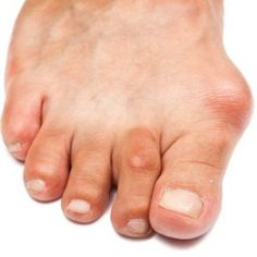 Six Effective Home Remedies For Gout