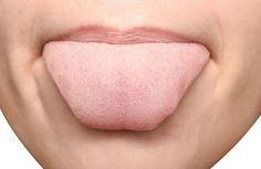 Le saviez-vous ? Les marques sur la langue ont une signification et permettent de découvrir plusieurs affections ! Venez les découvrir !