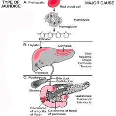Jaundice Causes, Symptoms And Types