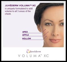 HERE COMES VOLUMA! Juvederm Voluma is the first filler approved by the FDA for correcting volume loss due to aging in the cheek area. Dr. Katz and Dr. Cangello of Juva Skin, Laser and Plastic Surgery Center are two of a very select group of doctors who can now offer patients treatment with Voluma before it is officially released for use by the general medical community in December of this year!