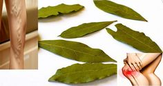No More Varicose Veins, No Pain In Joints, Loss of Memory, or Headaches Using Bay Leaves and Olive oil