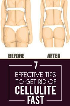 Check out these tips on how to get rid of cellulite. #weightloss #health