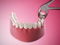 Wisdom tooth extraction in Barsha at the best dental clinic in Dubai. Extract your teeth by well qualified and experienced oral surgeon who can do oral procedures with less pain and issues. For best dental services at affordable cost, visit our clinic. Teeth Implants, Dental Implants, Wisdom Teeth Healing, Tooth Extraction Care, Dental Extraction, Impacted Tooth, Smile Dental, Dental Care, Wisdom Teeth Removal