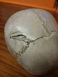 Depressed skull fracture via Dead Sexy (@DeadSexy1950)