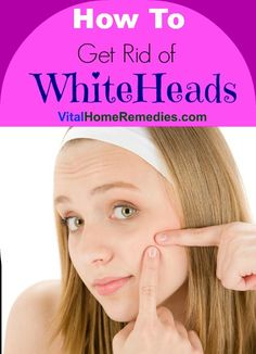 How to Get Rid of Whiteheads | Vital Home Remedies