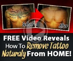 """The laser tattoo removal process explained """"Dorian, I know you preach natural tattoo removal. And after reading your guide I am already planning to buy my in. Natural Tattoo Removal, Tattoo Removal Cost, Cover Up Tattoos, Body Art Tattoos, Cool Tattoos, Tattoo Eraser, Tattoo Fixes, Tattoo Off, Diy Tattoo Permanent"""