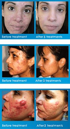 With our expertise and fully qualified therapists we can treat acne and acne scarring.  This treatment is non invasive.  Ring up for a free consultation today 01325 461230