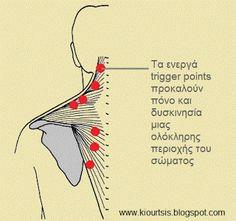 Φυσικοθεραπεία Χάρης - Μιχαήλ Κ. Κιουρτσής: Θεραπεία μυικού πόνου ( trigger point therapy) Trigger Point Therapy, Trigger Points