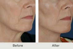 Thread Lifts: Are They a Good Idea? #threadlift #neck blog from #Charlotte facial plastic surgeon Dr. Kulbersh.