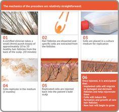 12 Best Hair Loss Solutions images in 2012 | Hair loss, Losing hair