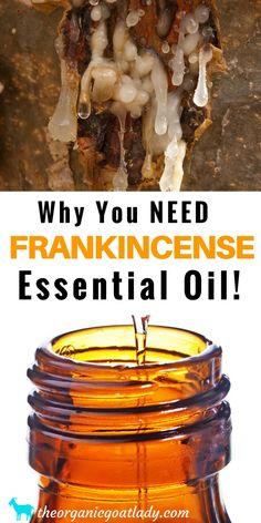 Frankincense Essential Oil, Aromatherapy Recipes, Essential Oil Recipes, Essential Oil Diffuser Blends
