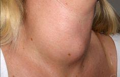 El cáncer de tiroides, el gran desconocido