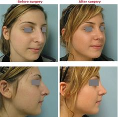 Structural abnormalities of the nose could affect sleep by causing airway blockage, damage airflow, and negative thoughts. More details about rhinoplasty in Beverly Hills please visit: http://www.vgplasticsurgery.com/beverlyhillsnosesurgery.htm