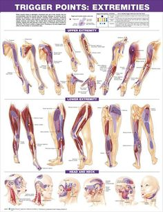 Trigger Points Set anatomy poster two posters show trigger point locations with primary and secondary pain sensitive zones of muscles. Muscles for doctors and nurses.