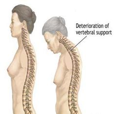 Exercise for a Dowager's Hump. The best course of action is, of course, not getting a dowager's hump in the first place. Once you have it, you cannot get rid of it; but you can take preventive measures to avoid this condition. Scoliosis Exercises, Back Exercises, Stretches, Kyphosis Exercises, Osteoporosis Diet, Facial, Bone Diseases, Physical Therapy, Menopause
