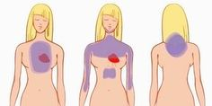 Een maand voor een hartinfarct begint je lichaam je al te waarschuwen, dit zijn 6 aanwijzingen speciaal voor vrouwen.