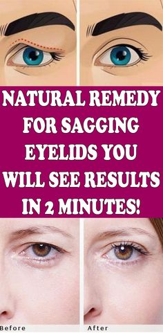 Natural Remedy for Sagging Eyelids You Will See Results In 2 Minutes! - Natural Remedy for Sagging Eyelids You Will See Results In 2 Minutes! Natural Medicine, Herbal Medicine, Ayurveda, Medicine Book, Natural Health Tips, Natural Healing, Natural Skin, Natural Life, Holistic Healing