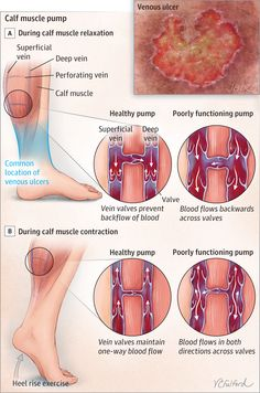 Venous ulcers of the leg occur because the veins become stretched, which prevents the valves in the veins from fully closing. Lack of exercise and lack of physical activity make the problem worse. The calf muscle pump refers to the collection of veins located deep inside the leg and that are...
