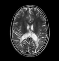 Adrenoleukodystrophy: Classical symmetrical white matter abnormality.