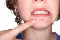 Dossier acné, la bête noire des ados