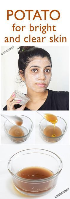 Honey potato mask. 30 min mask then rinse and moisturize. Firstly, you need to make fresh potato juice, for that- grate a small potato after peeling off the skin.Add 1 teaspoon of water into the grated potato and mix it well.Put everything into a muslin cloth and squeeze out all the water thoroughly. This is your potato juice. Use the potato residue in your food.Now, in a bowl, add in 1-2 tablespoons of potato juice and pour in 1 teaspoon of honey.Give the solution a good mix. Apply.