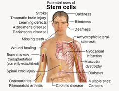 Has anyone in the world been treated using stem cells?