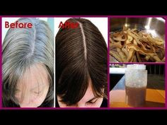 Here's an amazing home remedy that will help you reverse your hair graying and turn them black again and the best thing about this remedy is that is surprisingly simple and effective and all you need is just the potato peels. Make sure here for the potato peels, the potatoes are good and not in …