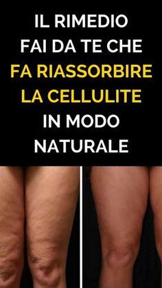 Il Rimedio Fai Da Te Che Fa Riassorbire La Cellulite in modo naturale