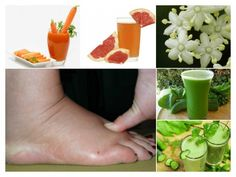 enfermedades graves como renales o cardíacas... Eliminar los líquidos retenidos es necesario y se puede hacer con jugos caseros para la retencion de liquido
