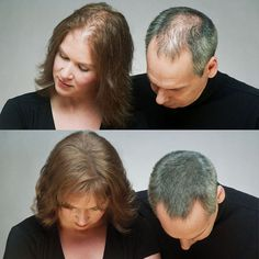 Everybody faces, hair loss at some of their age. However, what is different is how severe it is in your case? Sometimes, hair fall might happen due to the seasonal change which is quite common among people. On the other hand, sometimes it can be more serious like owing to hormonal changes in the human body.