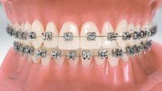 ارتودنسی باعث شیوع پوسیدگی می شود سام حکیمی، جراح دندانپزشک گفت: ارتودنسی دو بخش است، زمانی که بلوغ استخوان ها تکمیل نشده است و زمانی که بلوغ استخوان ها تکمیل شده است و درز استخوانی بسته می شودارتودنسی ضرر هم دارد به این صورت که اگر نیروی زیادی در زمان کم به دندان ها وارد شود، می تواند تحلیل خارجی ریشه را انجام دهد و بدون این که شخص متوجه شود دندان خود را از دست می دهد که می تواند ناراحتی بافت نگهدارنده را زیاد کند و باعث شیوع پوسیدگی در دهان شود