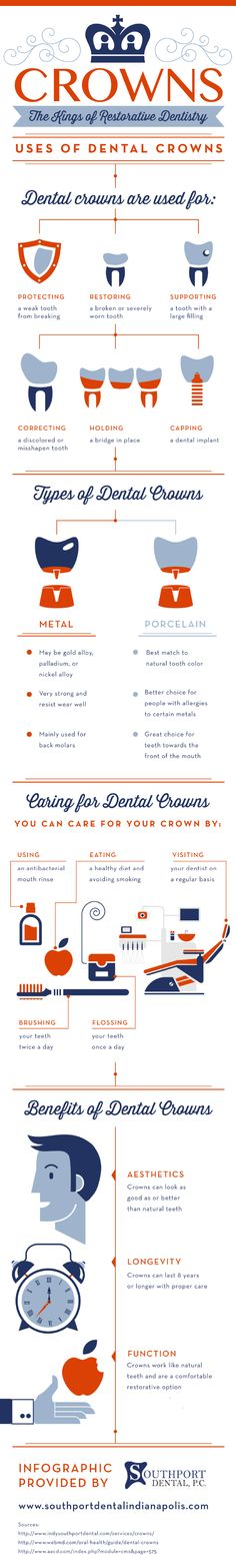 Crowns: The Kings Of Restorative Dentistry   #Infographic #Dentistry