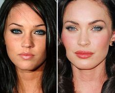 Megan Fox Plastic Surgery Before After Always interesting what you can find when you type in surgeons and other related terms