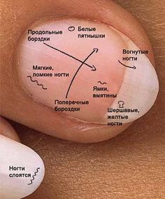 Diseases of nails Healthy Nails, Healthy Skin, Wedding Manicure, Facial Exercises, Gel Designs, Alternative Medicine, Health Remedies, Beauty Secrets, Nail Care