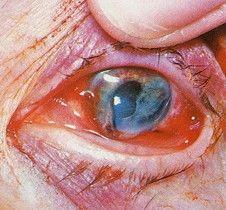© American Academy of Ophthalmology: Eye trauma from Fireworks LInk to site with many pictures Vitreous Humour, Eye Floaters Causes, You Mean The World To Me, Dark Circles Under Eyes, Vision Eye, Eyes Problems, Medical Information, Party Entertainment, Crazy Eyes