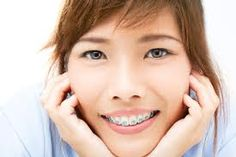 Clear #braces can straighten your #teeth without many of the side effects