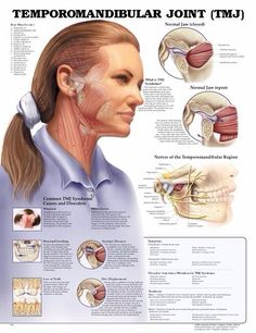 TMJ - Temperomandibular Joint - supposedly I have this. I've had a physician say I have this. I've had a dentist say I have arthritis in my jaw. Hmmm...