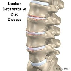 Degenerative Disc Disease (DDD):  I am living with this, along with 3 herniated discs.  Life with back pain is not fun.
