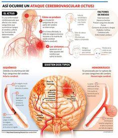 ¿Cómo ocurre un ataque cerebrovascular? - Investigación y Desarrollo
