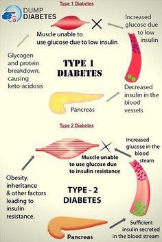 Doctors Reversed Diabetes in Three Weeks! - type 2 diabetes #diabetes#diabetes #symptoms #DiabetesCureChildren