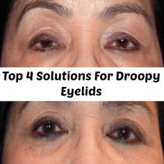 Natural Remedies For Droopy Eyelids