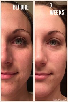 #Nerium before & after!!! Did you know that store bought #skincare #creams offer you 5-10% improvement in your skin... #Nerium AD offers 30-69% improvement with ONE product. You do the math☺️ $80 last 6-8 weeks.