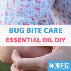 Essential Oils for Bug Bites: Caring for Your Bug Bites | DrEricZ.com