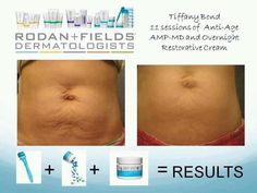 Got stretch marks after 11 uses of rodan fields amp md this mother
