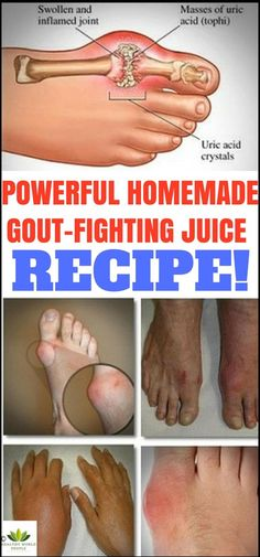 SAY GOODBYE TO GOUT FOREVER: POWERFUL HOMEMADE GOUT-FIGHTING JUICE RECIPE!