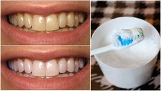 Baking soda is known for being one of the most effective options for whitening teeth. Baking soda is a mild abrasive that can help scrub away surface stains on teeth. How to Use Baking Soda to Whiten Teeth Baking Soda Teeth, Baking Soda Cleaning, Dental, Hydrogen Peroxide Uses, Tooth Sensitivity, Receding Gums, Teeth Bleaching, Natural Teeth Whitening, Whitening Kit
